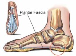Site of pain in plantar fascia